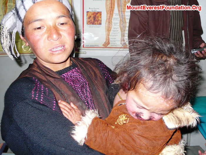 Hamu Sherpa and 2 year old daughter Nimke who we brought back from the service trek, in Dermatologist's office, during exam. Nimke has a skin infection covering her entire body.